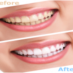 Cosmetic dentistry treatments you can afford: Buy a new smile