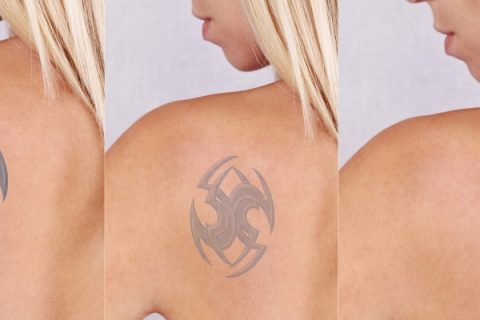 Tattoo Removal Misconceptions You Should Not Have
