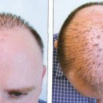 The Cost Factor Contributing decisive role in the Hair Transplants