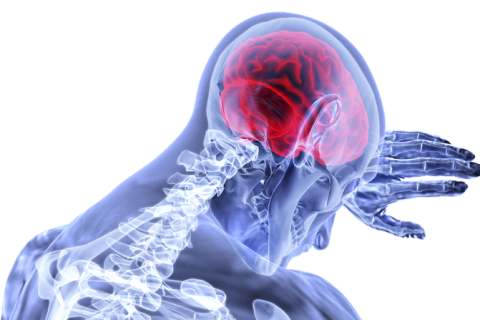Understanding Stroke Causes and Symptoms