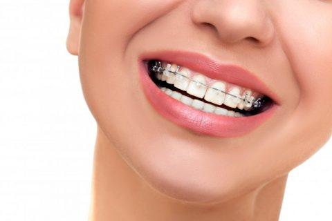 Common Orthodontic Emergencies
