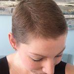 Managing Hair Loss After Chemo